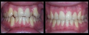 Malaligned and crowded teeth
