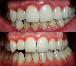 Dental-Scaling-and-Polishing